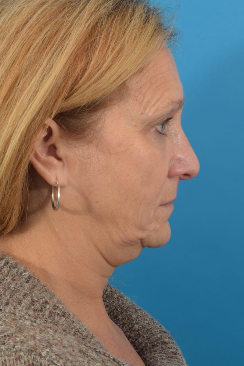 Skin Resurfacing Gallery - Patient 40544092 - Image 6