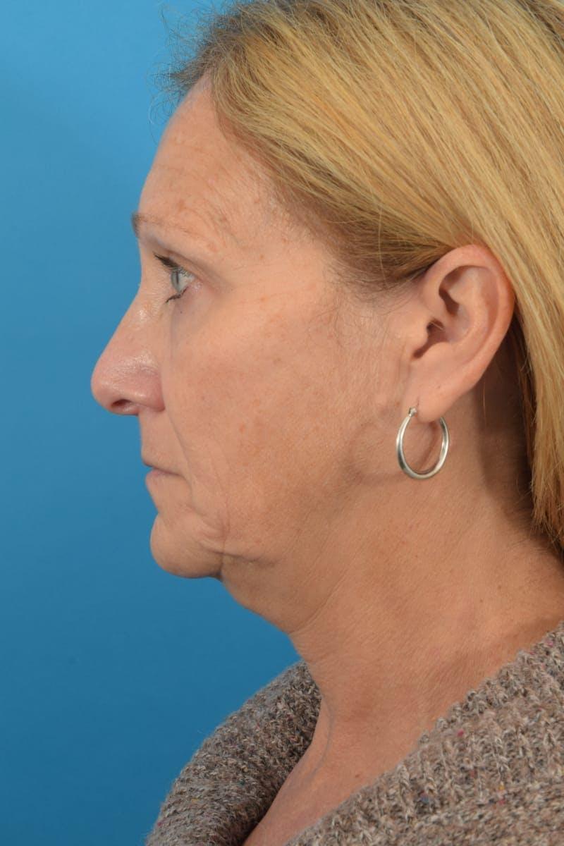 Skin Resurfacing Gallery - Patient 40544092 - Image 10