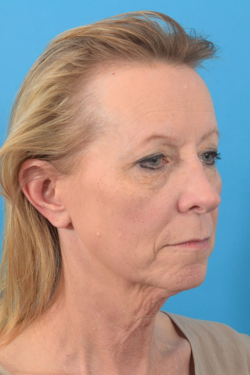 Fat Transfer Gallery - Patient 40749679 - Image 3