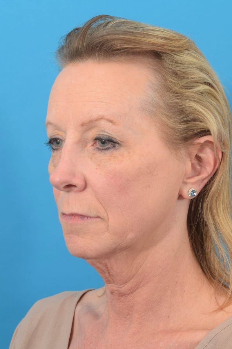 Blepharoplasty Gallery - Patient 57583680 - Image 3