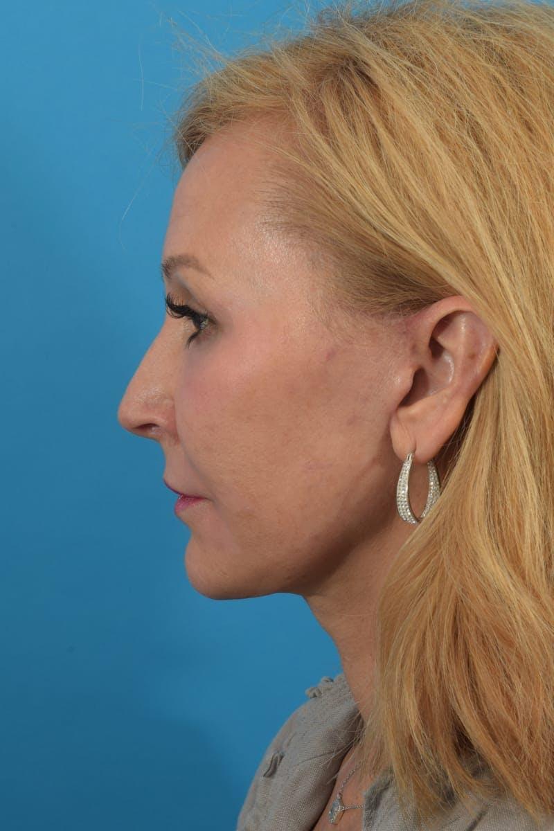 Skin Resurfacing Gallery - Patient 40749736 - Image 6