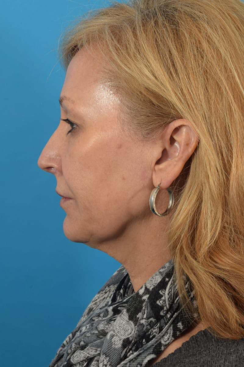 Skin Resurfacing Gallery - Patient 40749736 - Image 5