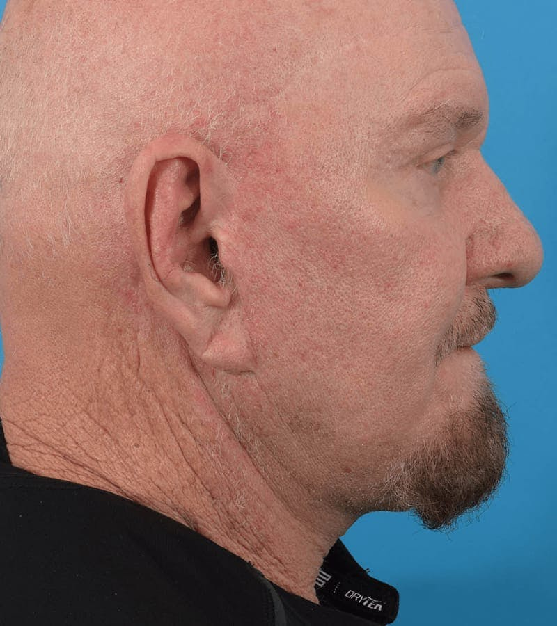 Blepharoplasty Gallery - Patient 36535139 - Image 2