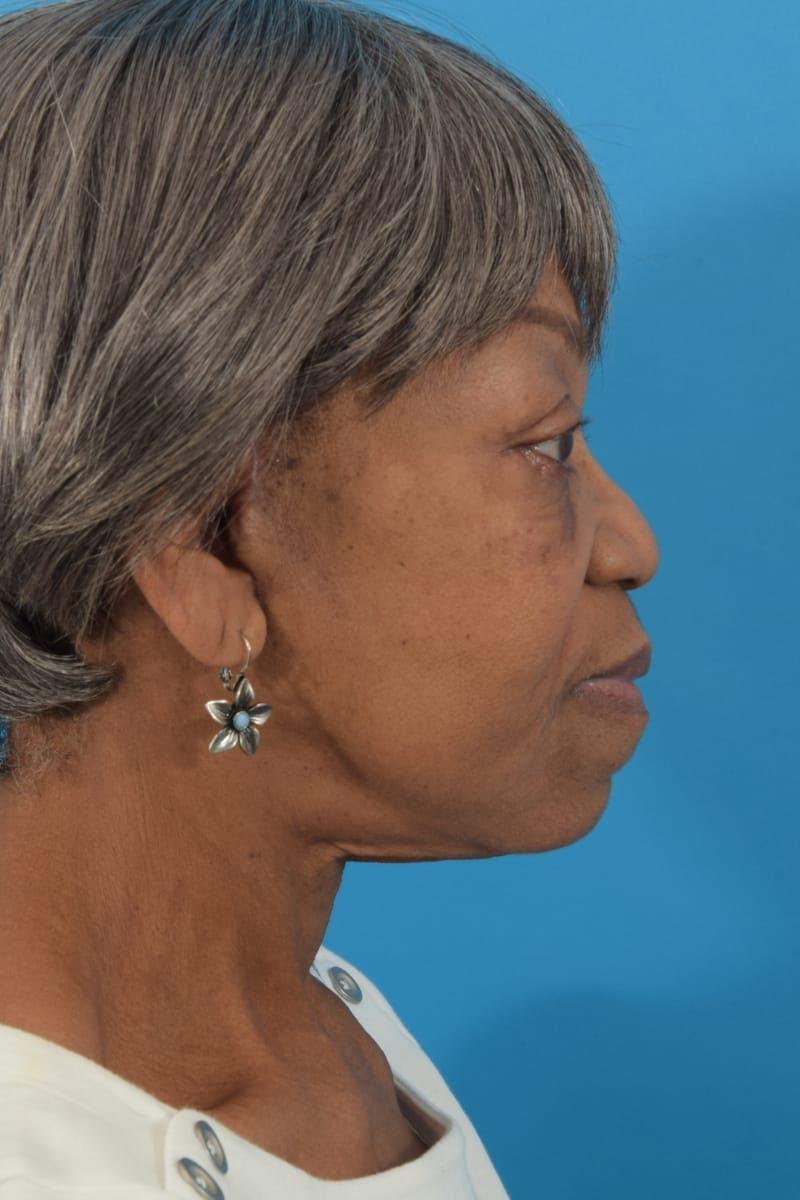 Facelift/Neck Lift Gallery - Patient 40544459 - Image 6