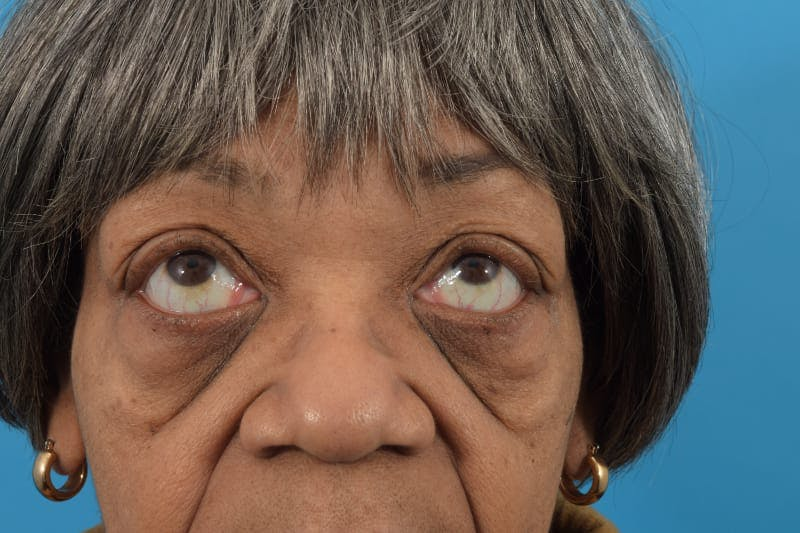 Canthoplasty Gallery - Patient 40544477 - Image 11