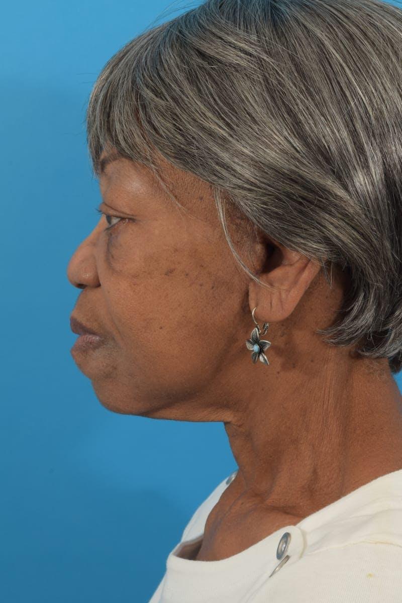Facelift/Neck Lift Gallery - Patient 40544459 - Image 8