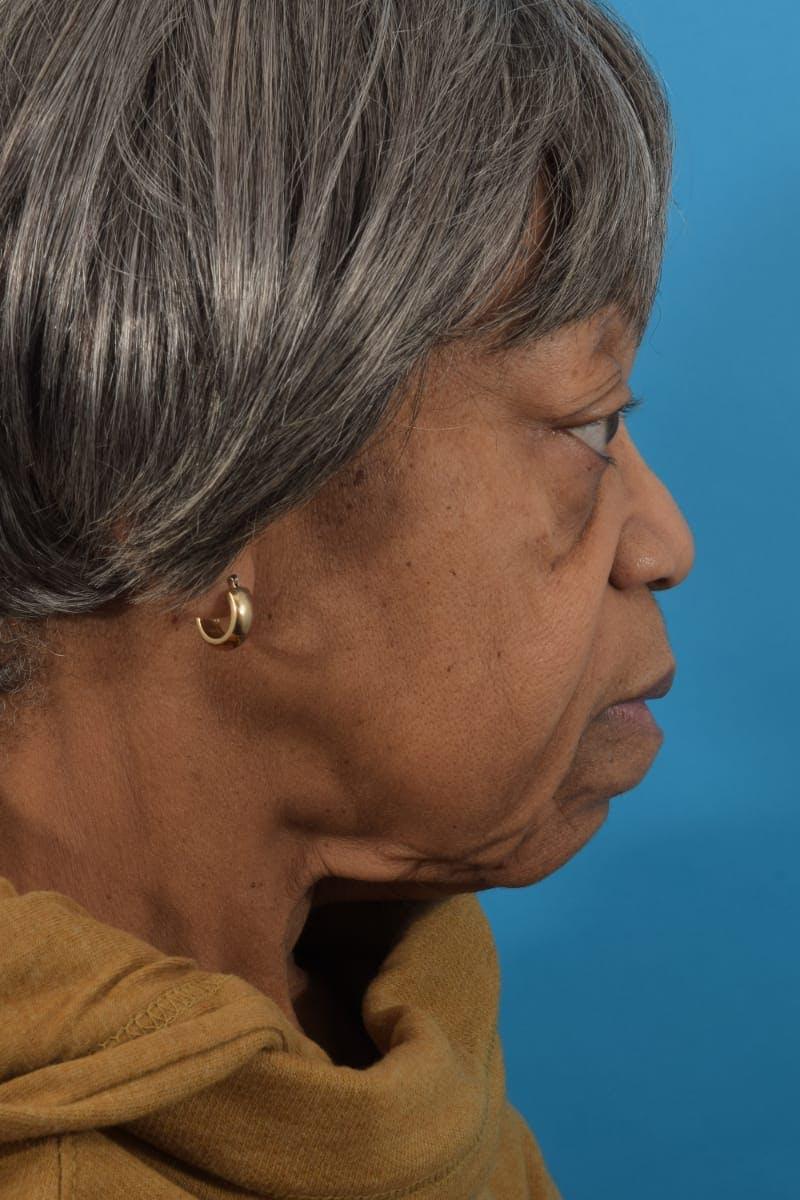 Facelift/Neck Lift Gallery - Patient 40544459 - Image 5