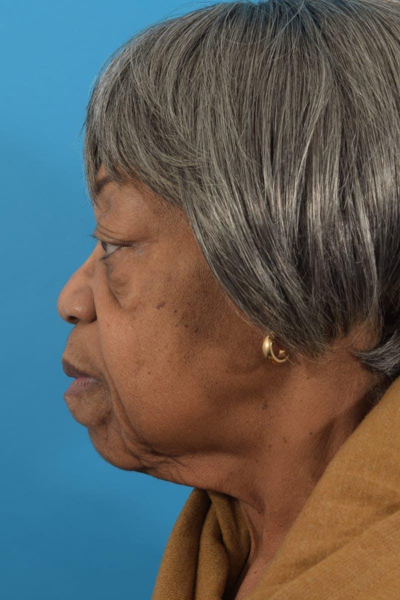 Facelift/Neck Lift Gallery - Patient 40544459 - Image 7