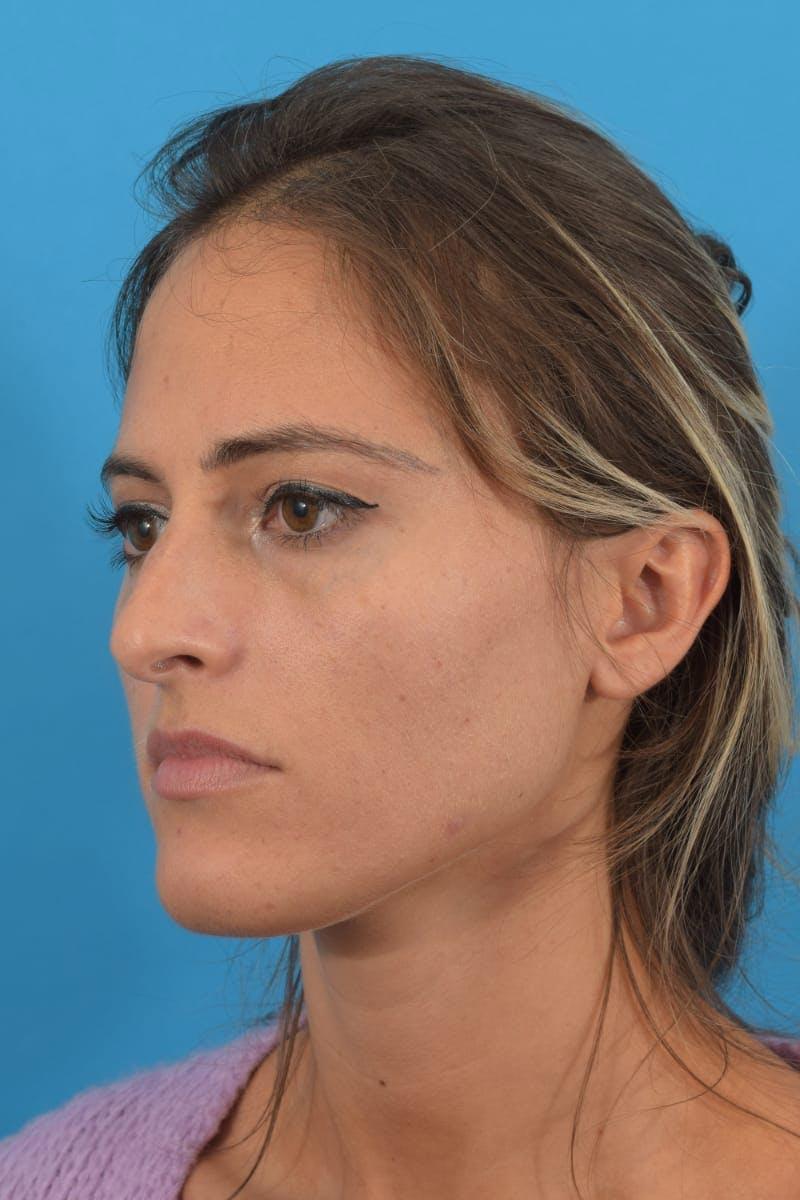 Blepharoplasty Gallery - Patient 40544526 - Image 5