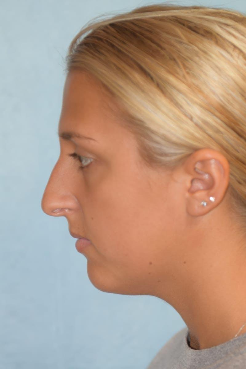 Rhinoplasty Gallery - Patient 36550413 - Image 7