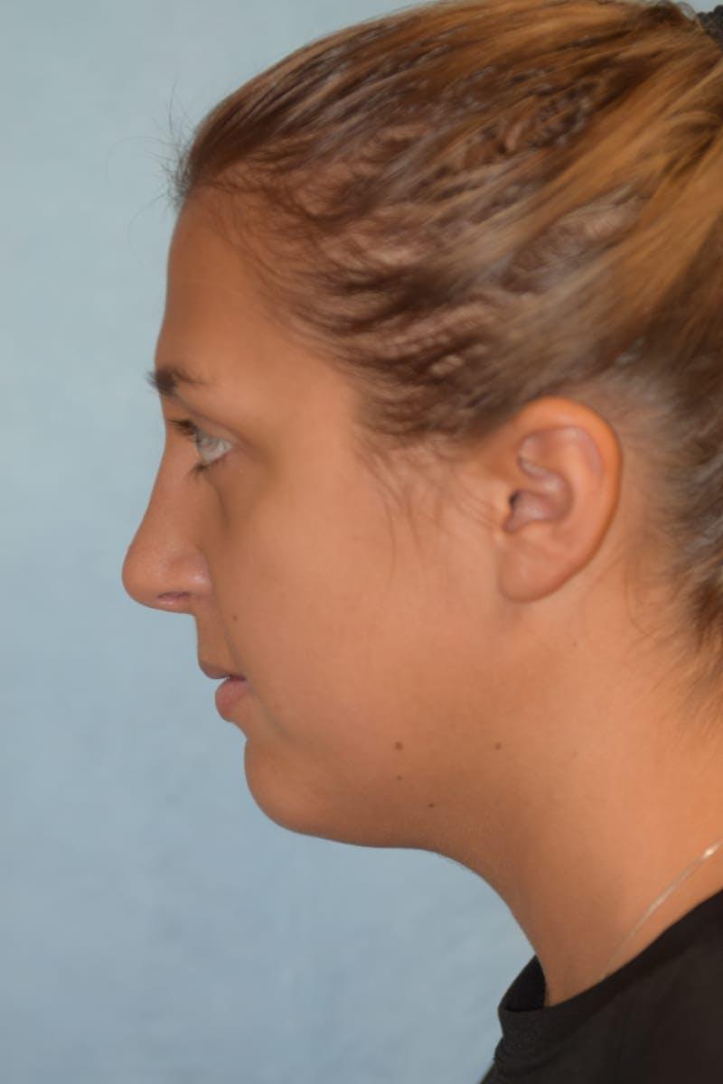 Rhinoplasty Gallery - Patient 36550413 - Image 8