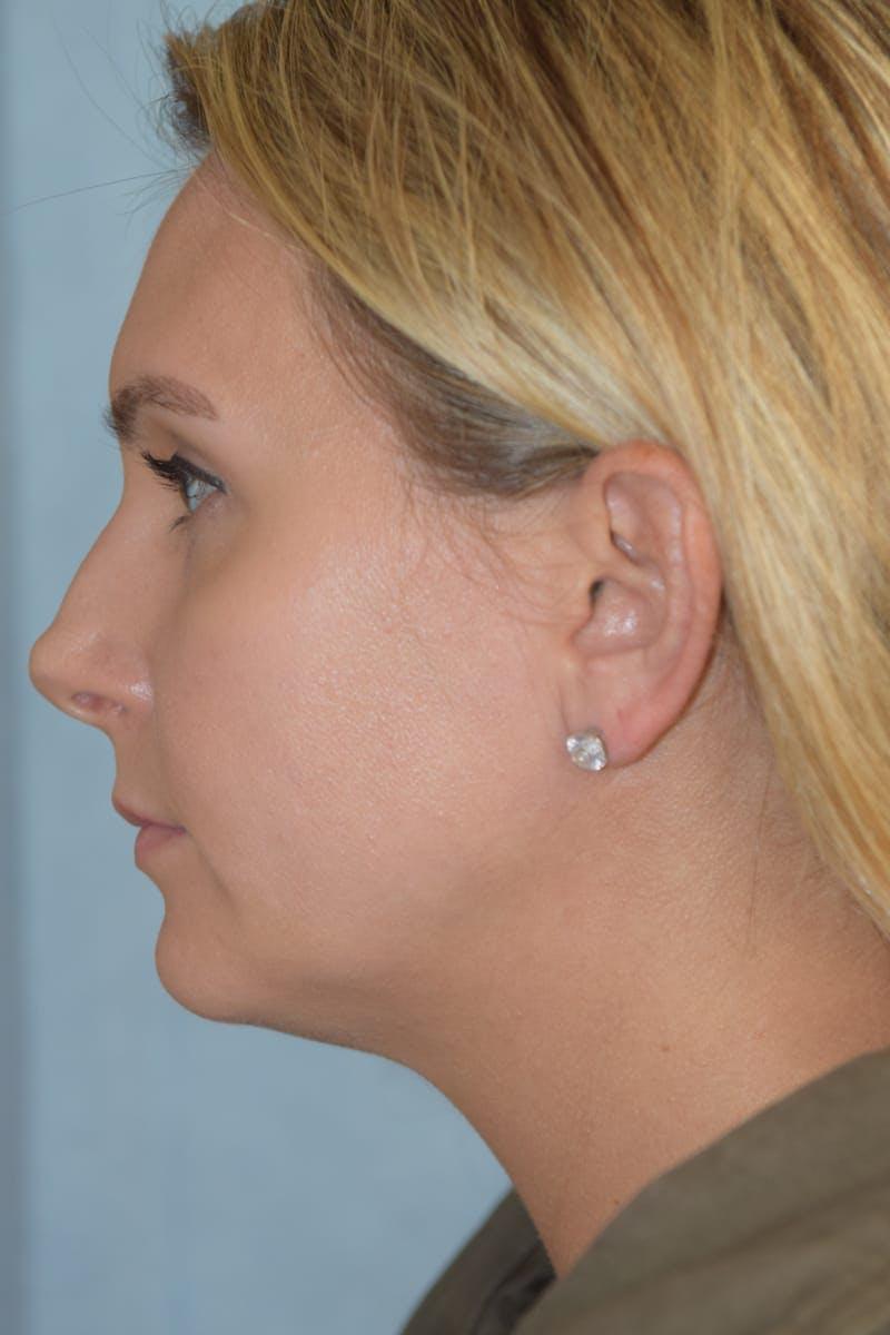 Rhinoplasty Gallery - Patient 36550406 - Image 9