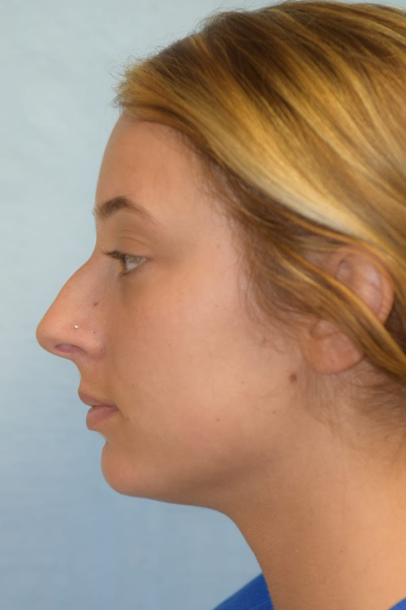 Rhinoplasty Gallery - Patient 36550410 - Image 5