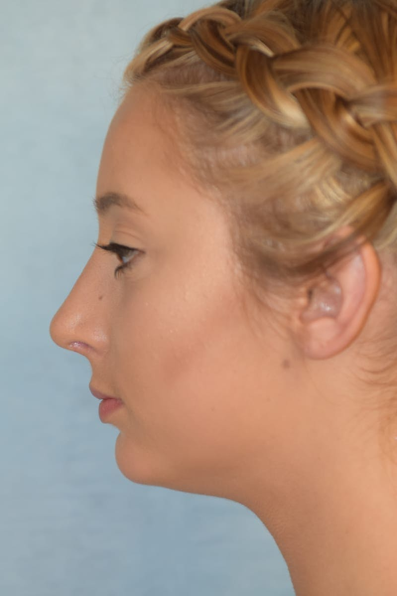 Rhinoplasty Gallery - Patient 36550410 - Image 6