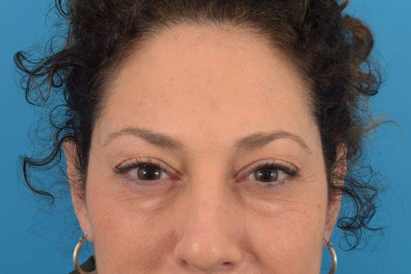Botox Gallery - Patient 40563211 - Image 4