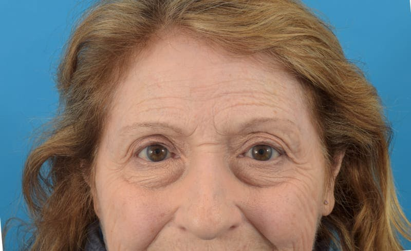 Botox Gallery - Patient 40563212 - Image 3