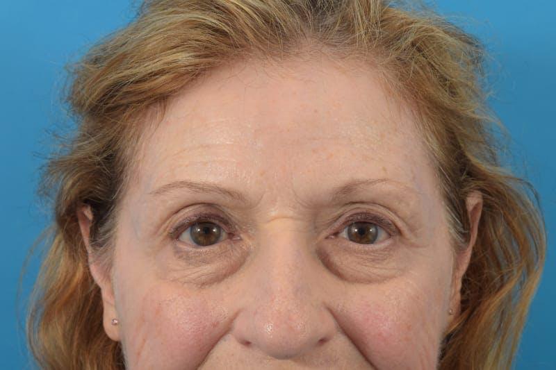 Botox Gallery - Patient 40563212 - Image 4