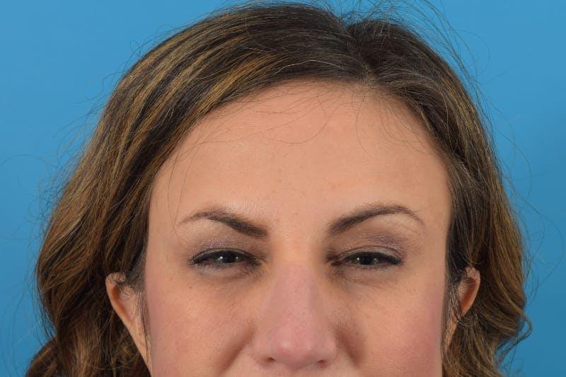 Botox Gallery - Patient 40563213 - Image 4