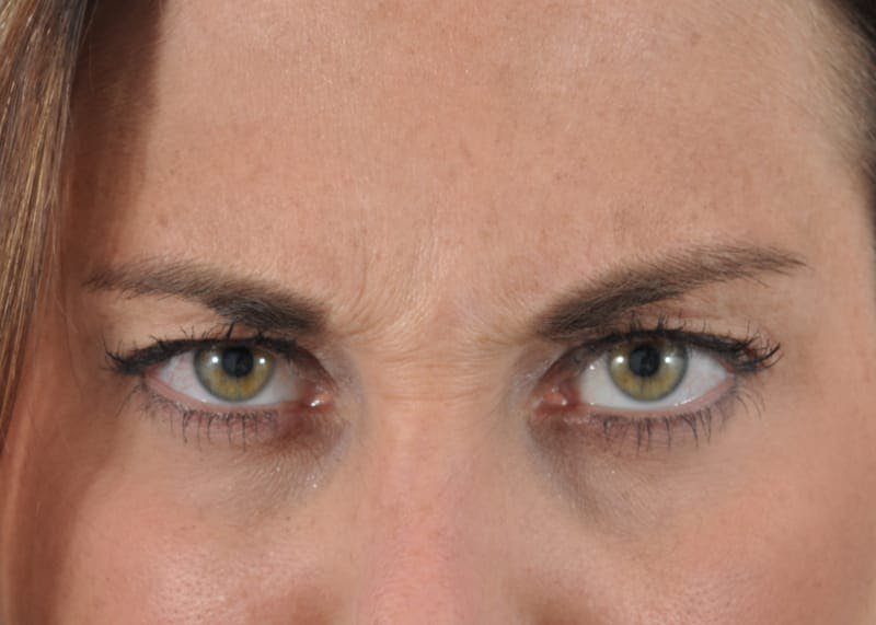 Botox Gallery - Patient 40563213 - Image 5