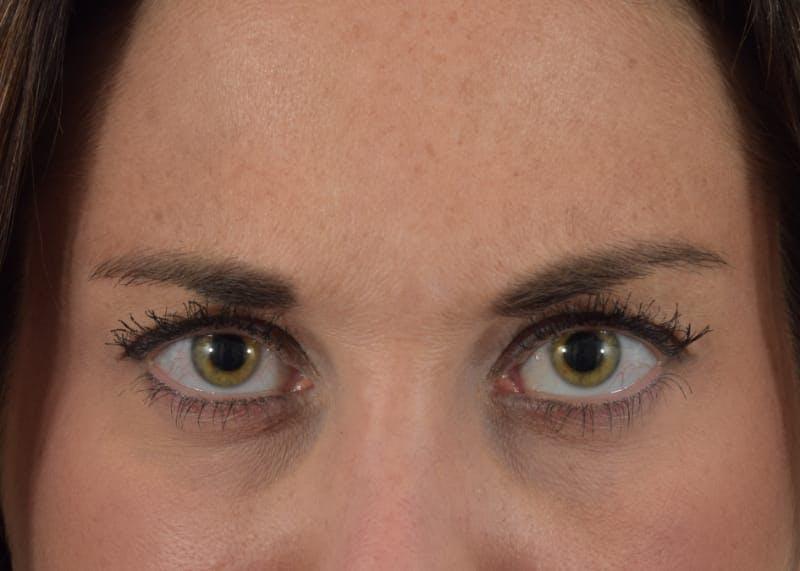 Botox Gallery - Patient 40563213 - Image 6