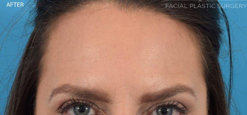 Botox Gallery - Patient 40563221 - Image 4