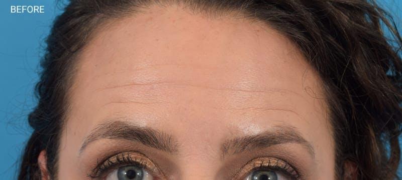 Botox Gallery - Patient 40563221 - Image 5