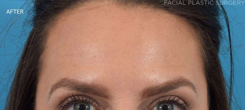 Botox Gallery - Patient 40563221 - Image 6