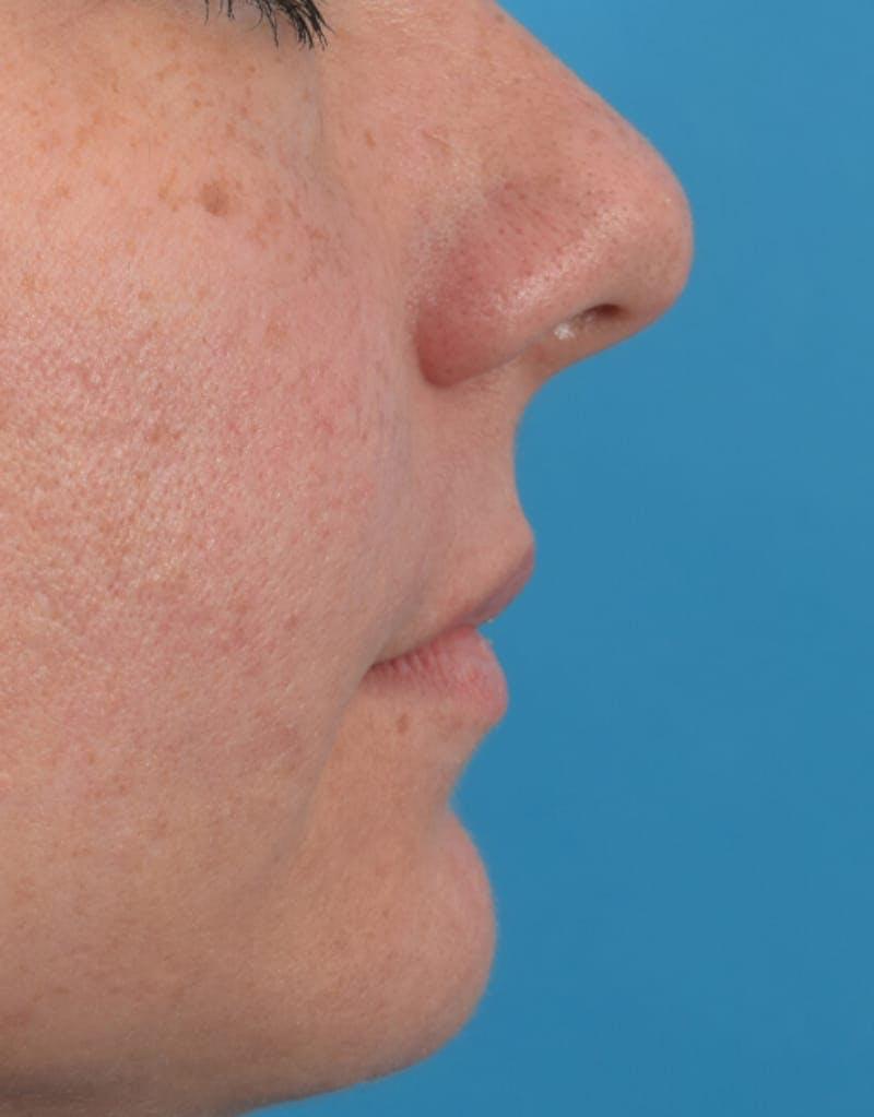 Filler - Lips Gallery - Patient 36543183 - Image 5