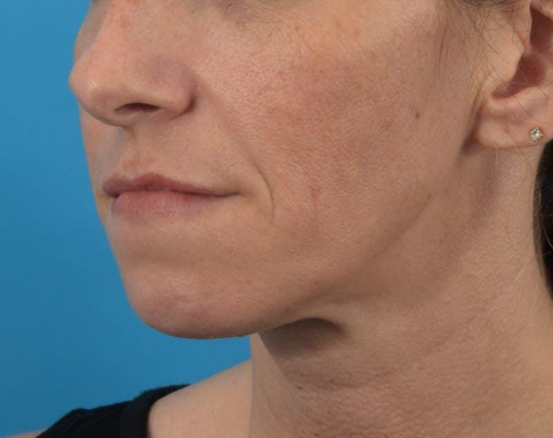 Filler - Lips Gallery - Patient 36543192 - Image 4