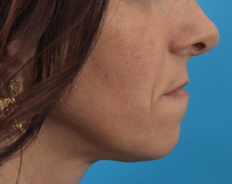 Filler - Lips Gallery - Patient 36543192 - Image 5