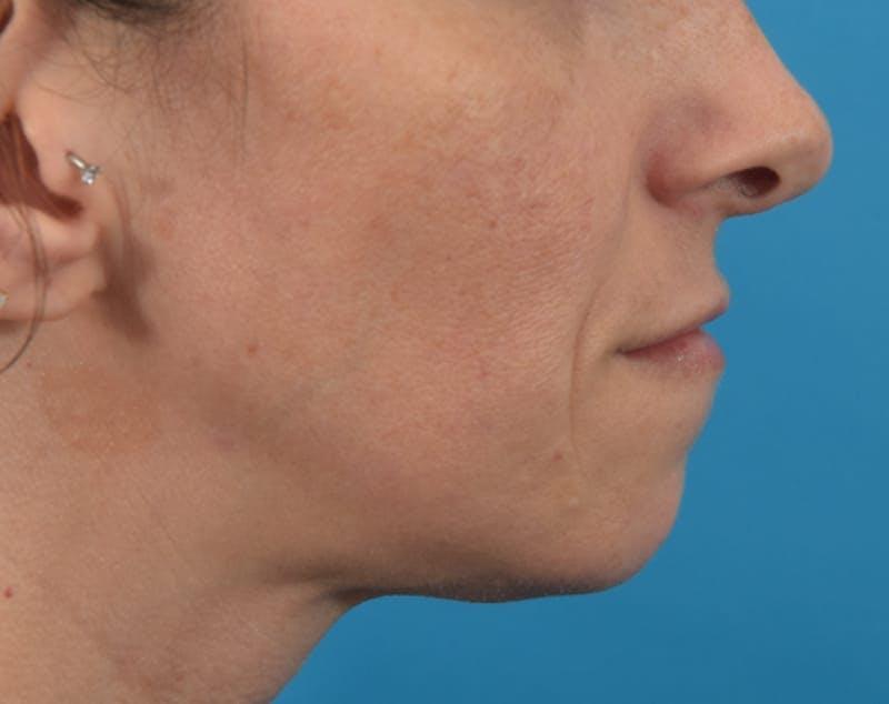 Filler - Lips Gallery - Patient 36543192 - Image 6