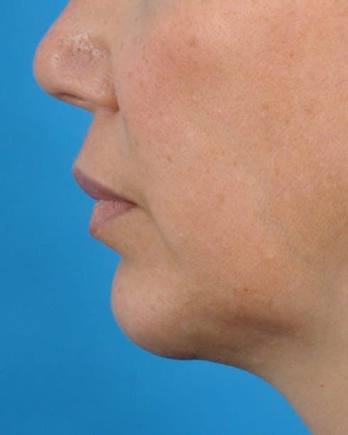 Filler - Lips Gallery - Patient 36543188 - Image 5