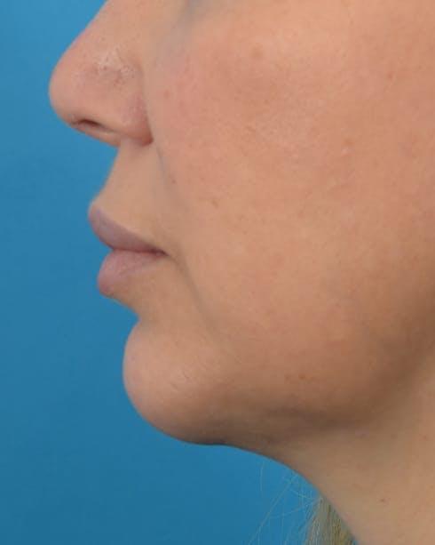 Filler - Lips Gallery - Patient 36543188 - Image 6