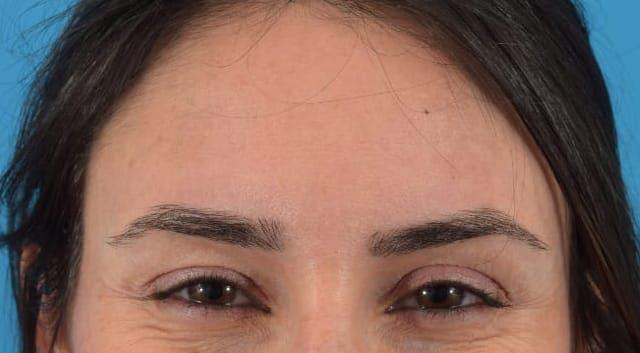 Botox Gallery - Patient 40563389 - Image 5