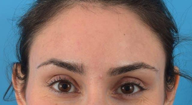 Botox Gallery - Patient 40563389 - Image 6