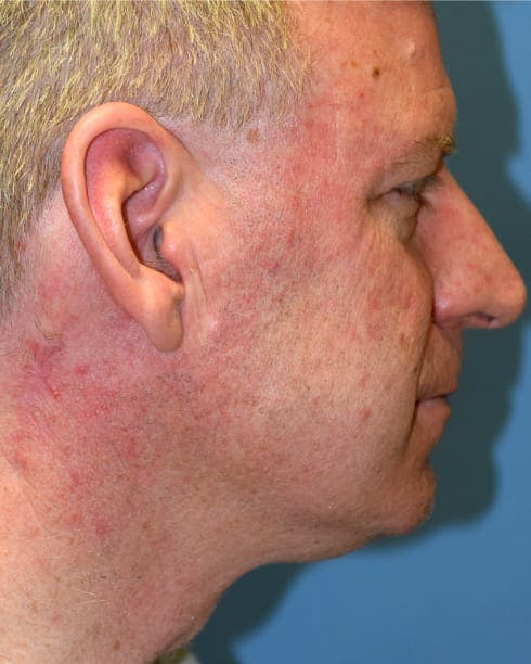 Skin Reconstruction Gallery - Patient 40563411 - Image 2