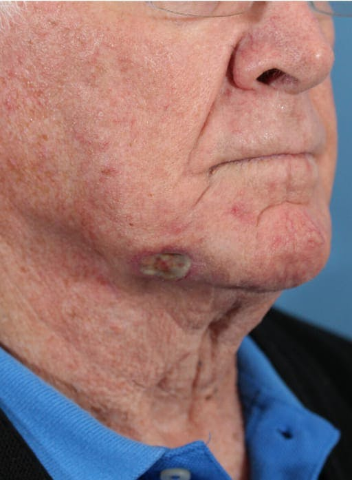Skin Reconstruction Gallery - Patient 36550466 - Image 1
