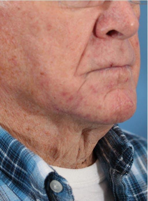 Skin Reconstruction