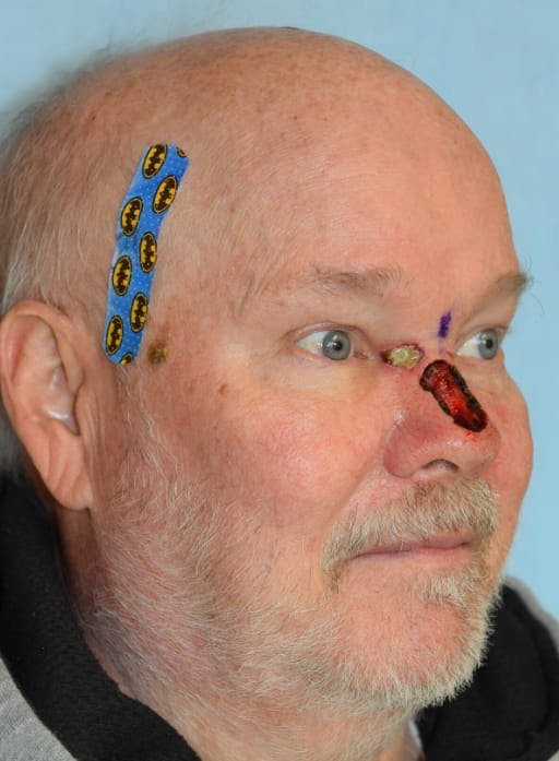 Skin Reconstruction Gallery - Patient 36550481 - Image 3