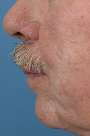 Skin Reconstruction Gallery - Patient 36550473 - Image 3
