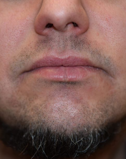 Skin Reconstruction Gallery - Patient 40563419 - Image 1