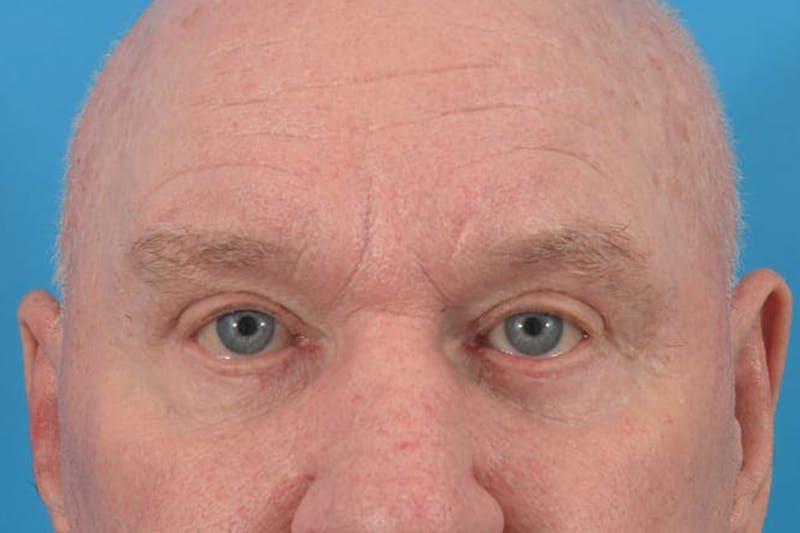 Blepharoplasty Gallery - Patient 36535140 - Image 2