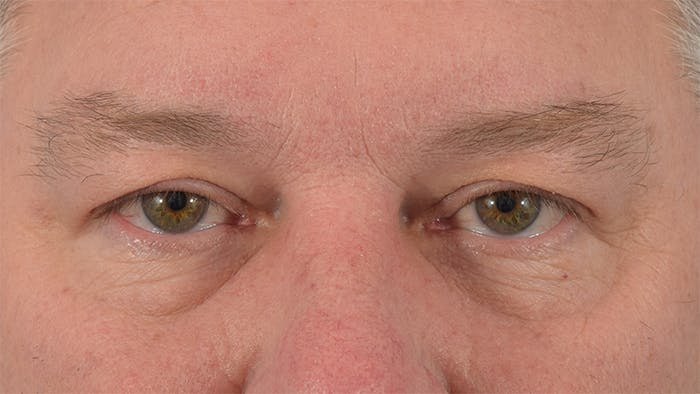 Blepharoplasty Gallery - Patient 57583630 - Image 1