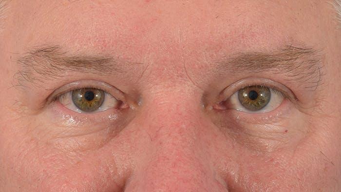 Blepharoplasty Gallery - Patient 57583630 - Image 2