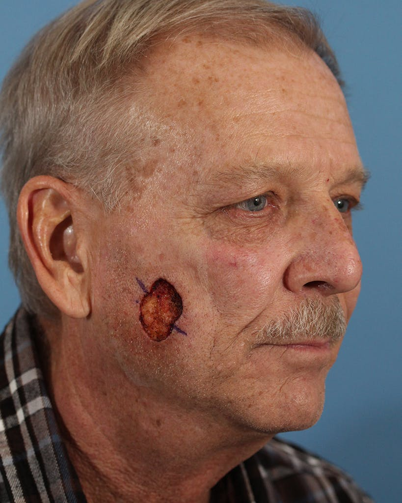 Skin Reconstruction Gallery - Patient 48085223 - Image 1
