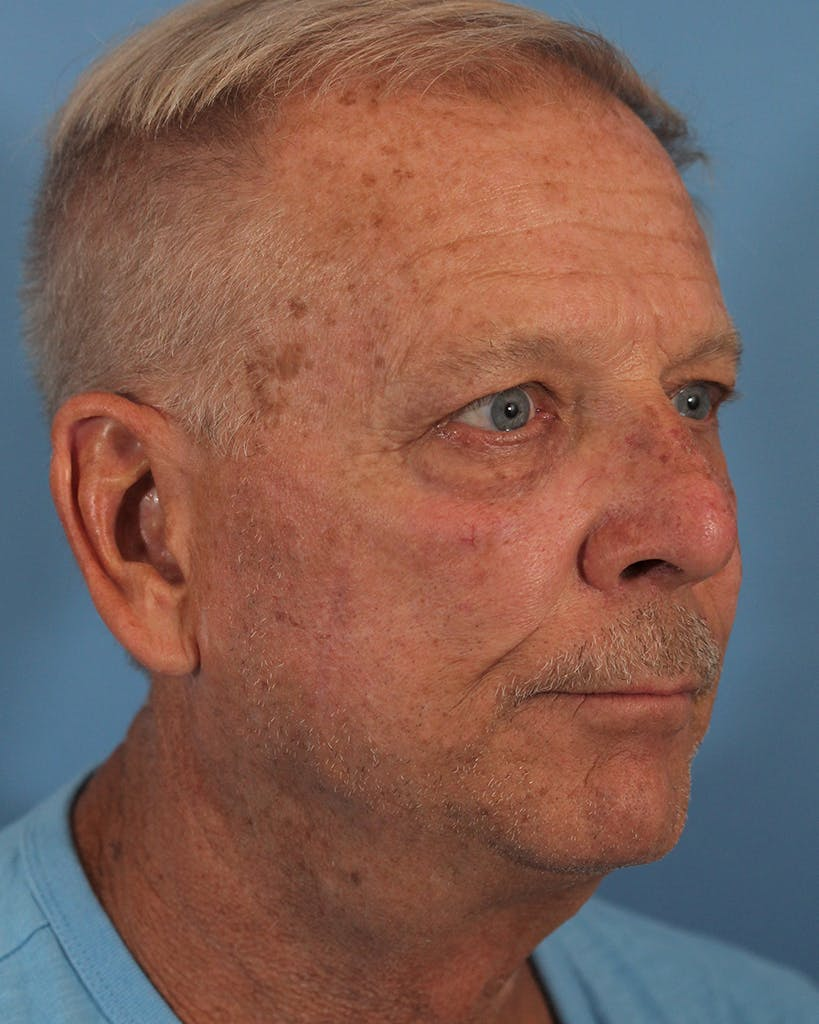 Skin Reconstruction Gallery - Patient 48085223 - Image 2