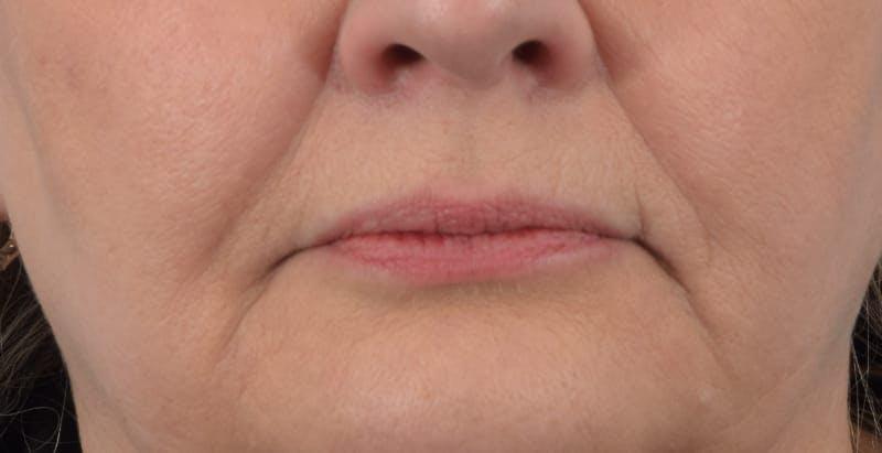 Facelift/Neck Lift Gallery - Patient 48085285 - Image 7
