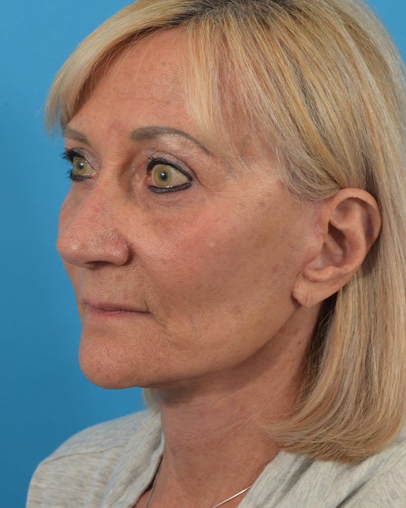 Facelift/Neck Lift Gallery - Patient 48085347 - Image 4