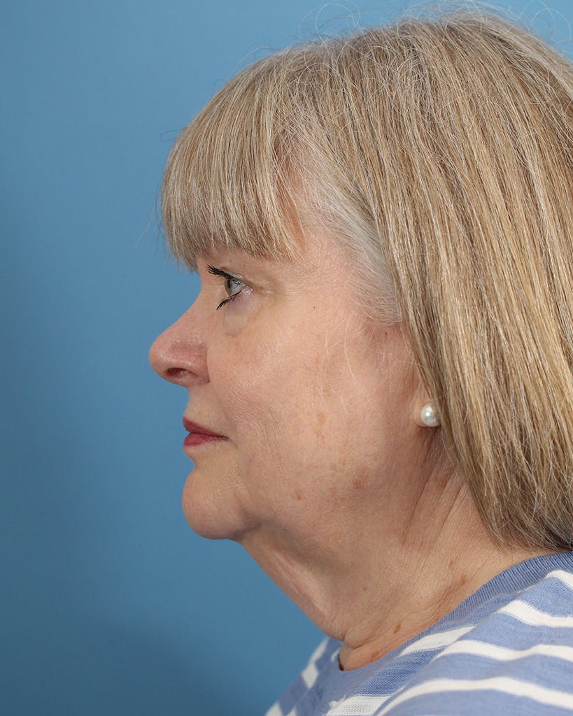 Facelift/Neck Lift Gallery - Patient 48085348 - Image 5