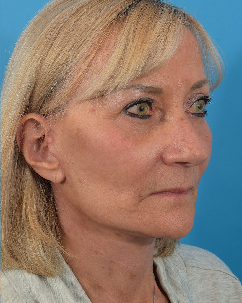 Facelift/Neck Lift Gallery - Patient 48085347 - Image 6